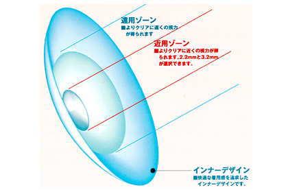 アイミーバイフォーカルソフト同心円型デザイン
